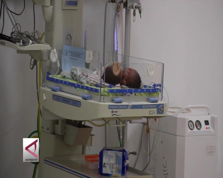 Dokter Putuskan Bayi Parapagus Tidak Bisa Dipisah