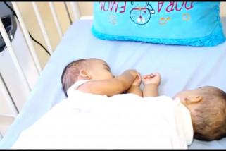 Bayi kembar siam akan jalani operasi 23 Juli